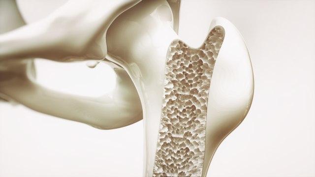 Osteoporoza – gdzie leżą prawdziwe przyczyny?